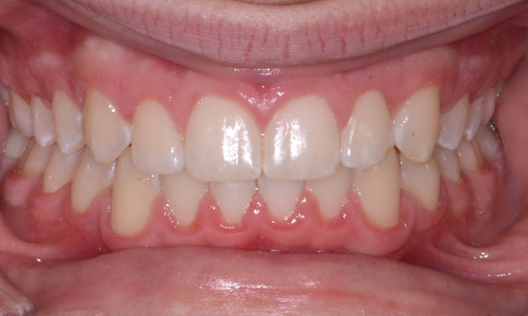 After smile teen treament overbite