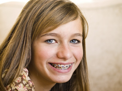 A teenager with braces smiling at Senestraro Family Orthodontics.