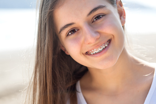 A girl smiling with braces in Wilsonville, OR.